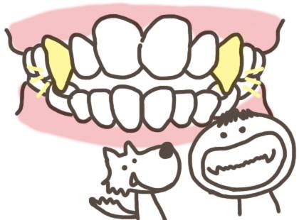 叢生・乱ぐい歯・八重歯