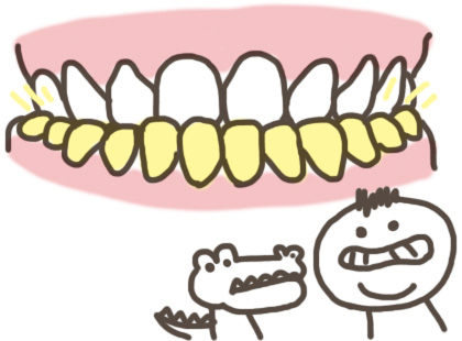 下顎前突(受け口)