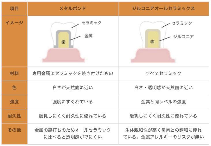 被せ物の材質の比較